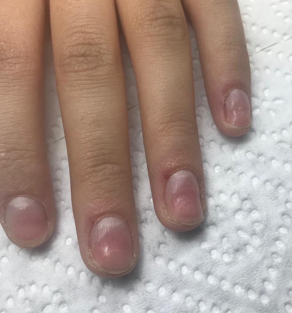 paznokcie uszkodzone frezarką
